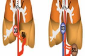 Les séquestrations pulmonaires à l'ère du scanner 3 D ...