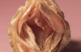 Pathologie vulvaire pédiatrique